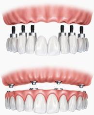 Dans de nombreux cas, la mise en place réelle de l'implant implique une approche d'équipe. D'abord, un chirurgien dentiste   place le poste implant dentaire dans votre mâchoire.