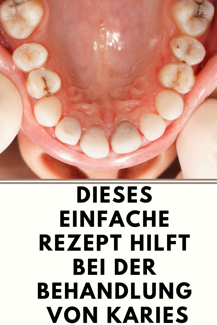 This simple recipe helps in the treatment of tooth decay   #mundpflege #oral care