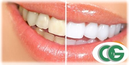 Centro Odontologico Gallo Blanqueamiento Dental Laser 011-4823-6283 www.odontologiagallo.com.ar