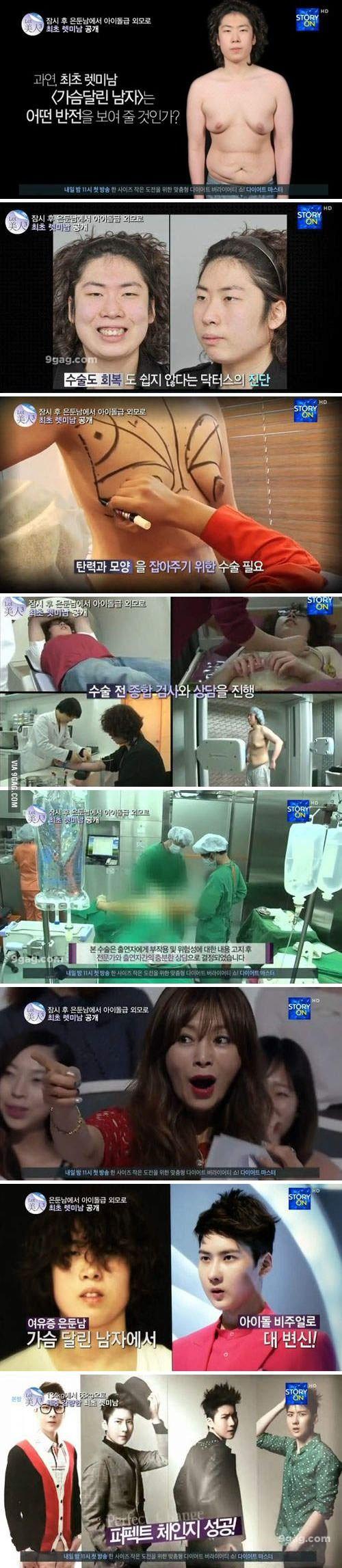 Korean surgery really scared me now