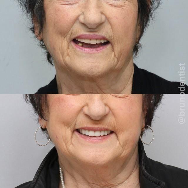 Hushed Dental Implants Before And After United States Oralcareph Dentalhygienistcup Dental Implants Affordable Dental Implants Dental Implants Cost