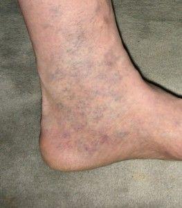 Iedereen heeft dit wondermiddel tegen spataderen wel in huis, maar niemand kent het.