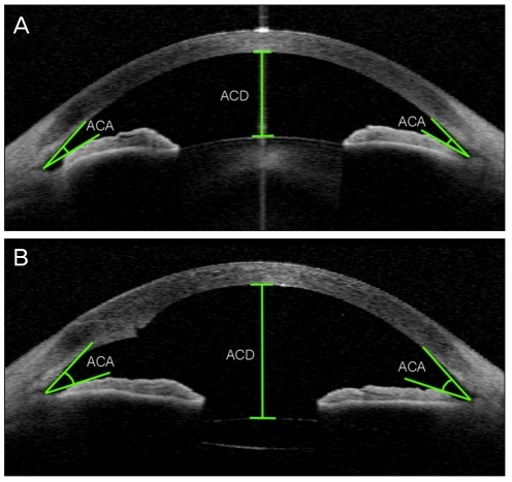 Optical Coherence Tomography test may offer a fast and easy way to monitor patients with multiple sclerosis