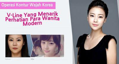 Discover The New You With WONJIN: REAL KOREA FACE CONTOURING - Garis V Yang Memikat ...