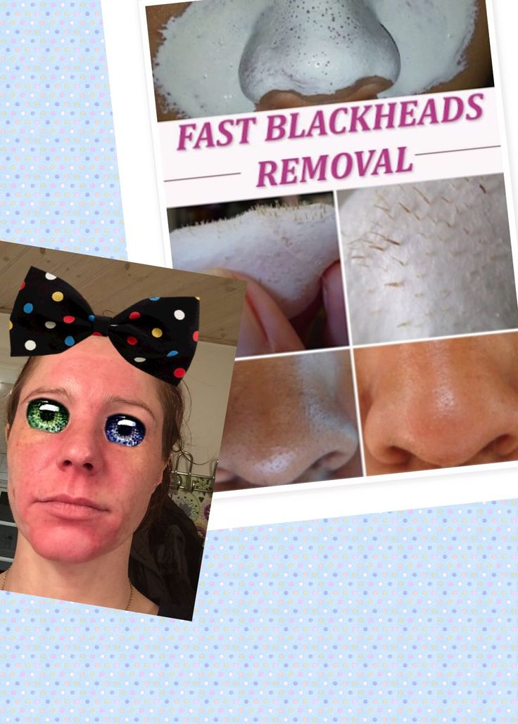 It sounded good: Get Rid of Blackheads in 10 Minutes  I must try, I thought, so I did, bad idea, the picture speaks for itself👎  the recipe is: 2 tablespoon milk. 1 tablespoon gelatin powder.