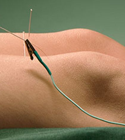 Scientists Finally Explain How Acupuncture Works... And It's Related To Marijuana