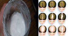 TuSalud.Info: Como hacer correctamente shampoo de bicarbonato de sodio, salvara tu cabello o recuperar el pelo perdido.