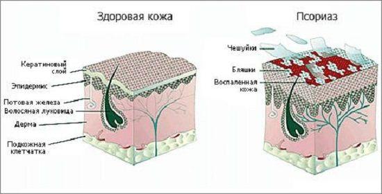 Страшно Интерестно)))): Лечение псориаза-эффект просто супер!