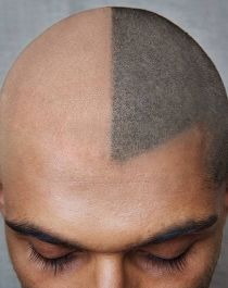 "There's a company that offers ""scalp pigmentation"" - tiny tattoo marks to simulate a buzz cut"