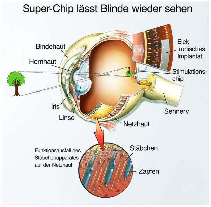 """Die Aufgabe der Netzhautprothese ist es, die eingeschränkte Funktionalität der Netzhaut des Auges zu verbessern und dadurch die Lebensqualität der Betroffenen, vor allem beiRetinitis pigmentosa, deutlich zu erhöhen. Dafür haben sich unterschiedliche Verfahren in der Medizin etabliert.  - Integration der Prothese  - Welche unterschiedlichen Arten gibt es?  - Fortgeschrittene Forschung im Bereich der """"echten"""" Netzhautprothesen  - Umfassende Hilfe für Betroffene"""