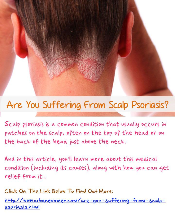 Are You Suffering From Scalp Psoriasis? - Scalp psoriasis is a common condition that usually occurs in patches on the scalp, often on the top of the head or on the back of the head just above the neck. And in this article, you'll learn more about this med
