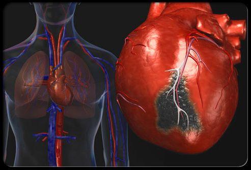 Illustration of heart attack.