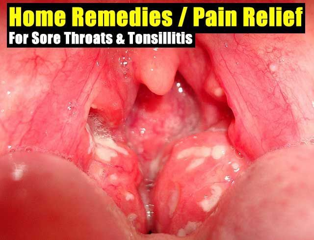 Treating sore throat from deep throating