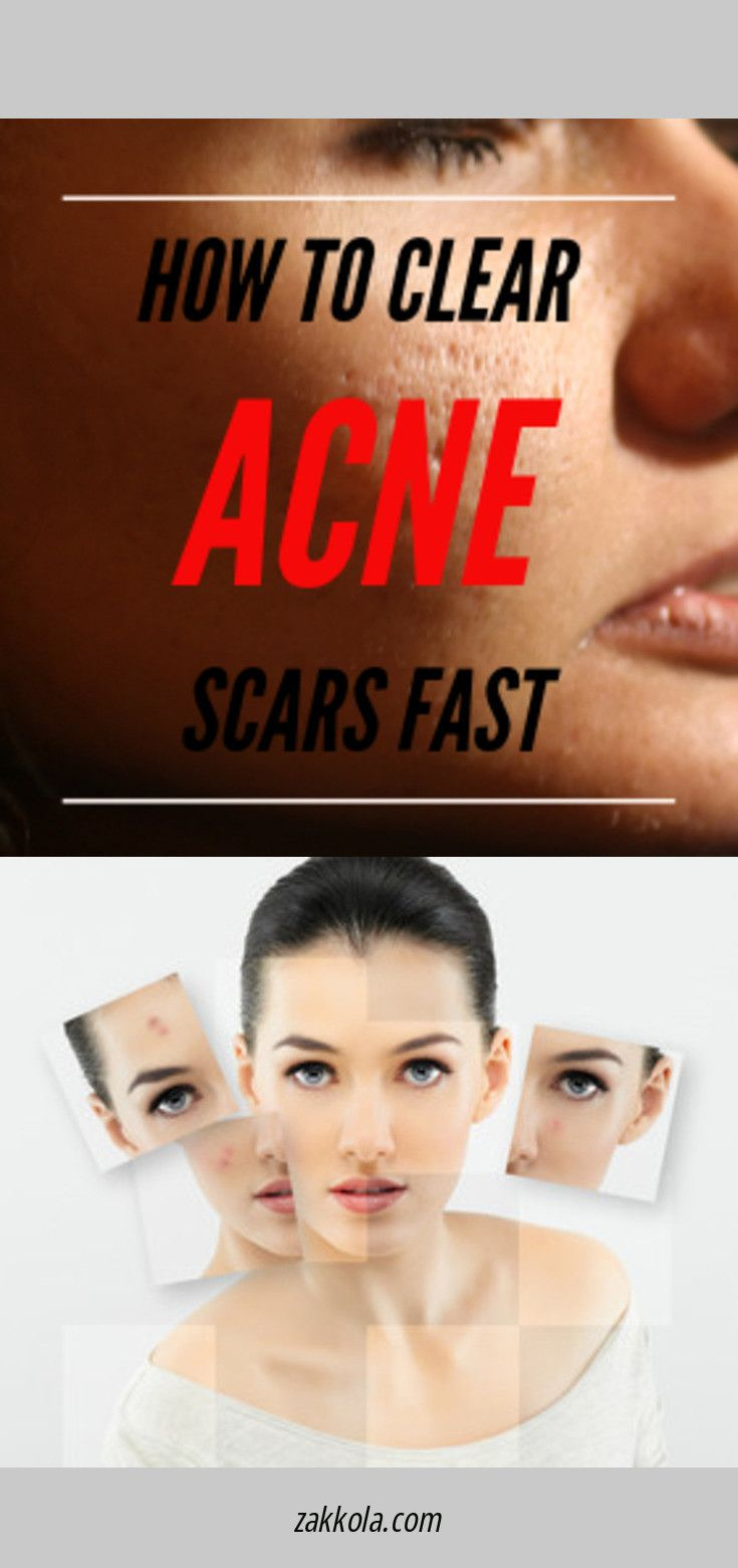 Read more about acne. Just click on the link to r…