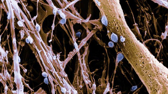 Elektronenmikroskopaufnahme des Hypothalamus mit Parenchymen und Neuronen | Bildquelle: Mauritius