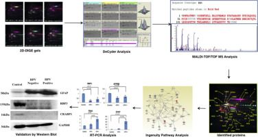 #JoP: Identification of differentially expressed proteins in retinoblastoma tumors using mass spectrometry-based comparative proteomic…