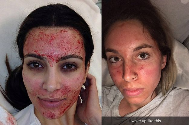 We Got The Kim Kardashian Vampire Facial And Things Got Bloody