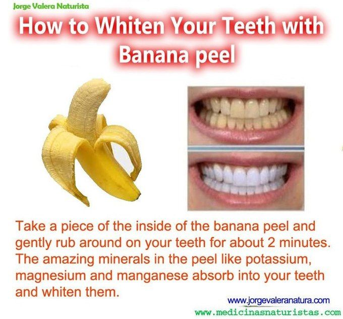 How to whiten your teeth with banana peel  #diy #beauty #teeth #white #banana