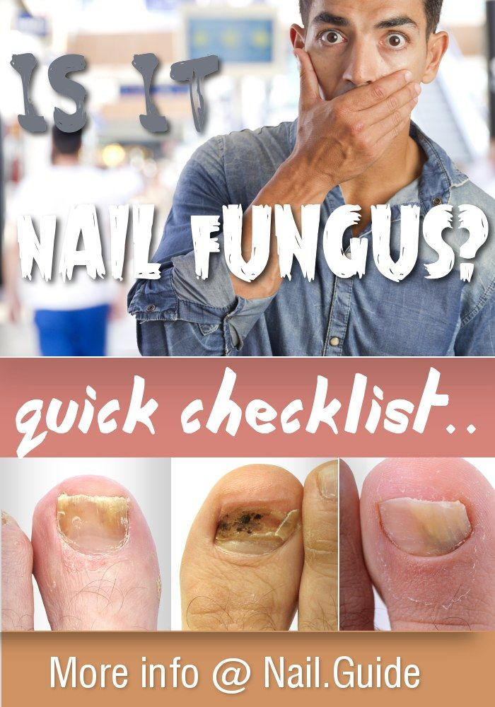 Is it Nail Fungus? Quick checklist.