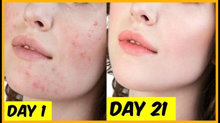 Défit 21 jours : mettez cela sur votre peau chaque jour pendant quelques minutes et le J21 Vous serez complètement impressionnée