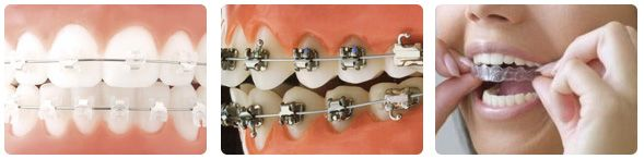 Types of Braces - Different Orthodontic Braces for Adults and Children