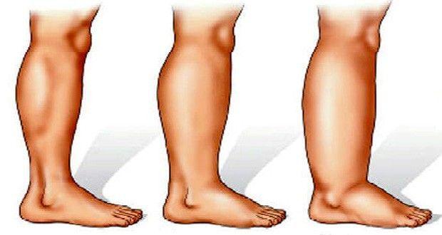 Les 16 meilleures solutions qui vont vous aider à vous débarrasser des jambes enflées. Les astuces pour vous débarrasser des œdèmes et des jambes gonflées.