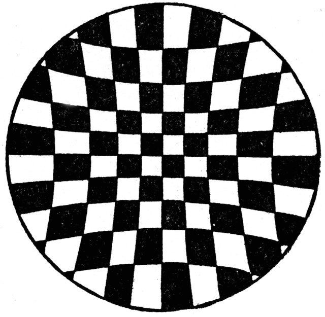 Illusion, Von Recklinghausen's Illusion
