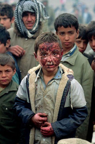 Kurdish boy injured by an Iraqi napalm bomb at the end of the Gulf War. Near Isikveren, Turkey, 1991. © Peter Turnley / Corbis 1991.