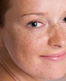 Las manchas oscuras no son todas iguales y por tanto, no deberían tratarse con 'cualquier' crema despigmentante sino las más adecuada para cada tipo de mancha. Por ejemplo, los léntigos solares y los léntigos seniles o 'manchas de la edad' se aclaran con vitamina C, ácido kójico y arbutina