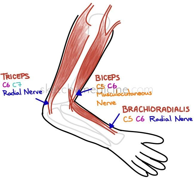 find that lesion deep tendon reflexes of the arm site