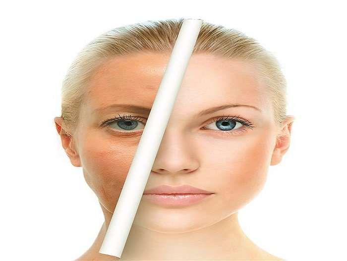 Απίστευτο: Φυσικό λίφτινγκ με δύο απλά υλικά της κουζίνας μας! αποτελεσματική και φυσική λύση για να σφίξετε το δέρμα σας και να δώσετε μια νεανική εμφάνιση
