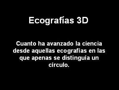 Ecografias 3D... JAJAJA