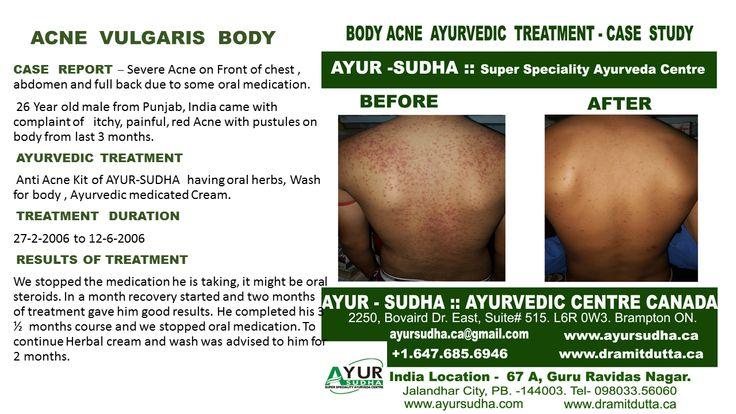 Skin Diseases Treatment in Brampton, Canada. Ayurvedic Treatments for all Skin Disorders.