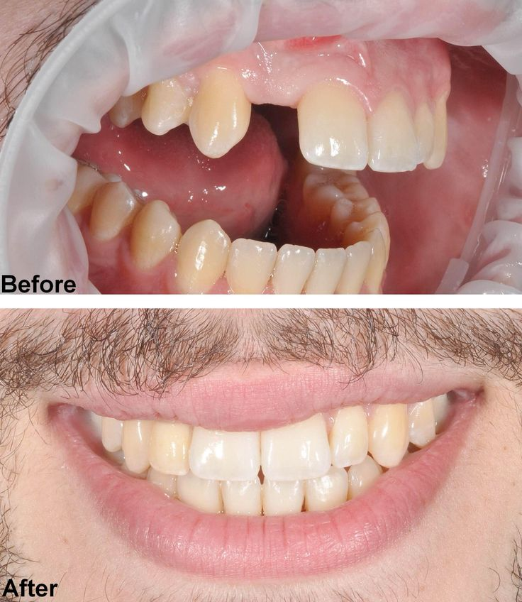 Results of a dental implant by Dr. Le  to book in for our FREE implant consultation contact us on 02 4731 4655