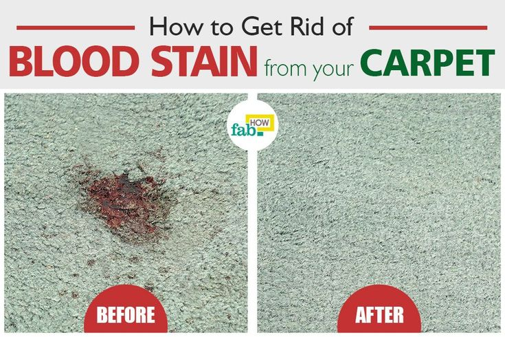 how to get blood out of carpet with vinegar