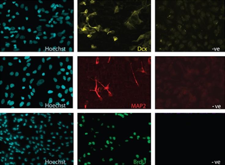 Los antidepresivos fomentan la generación de nuevas células cerebrales.