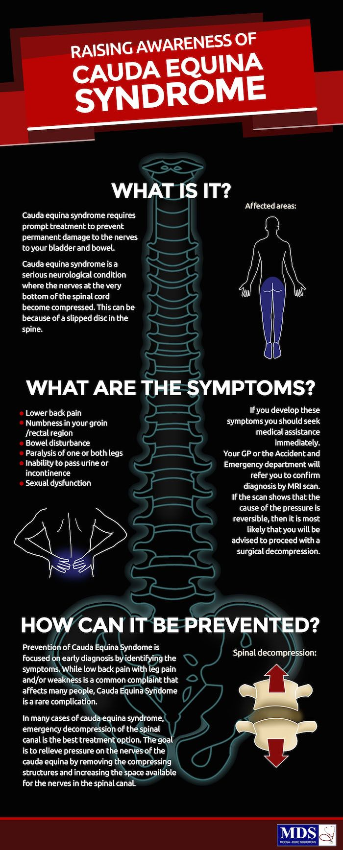 This infographic gives an overview of Cauda Equina Syndrome, what it is, and how it can be prevented through early diagnosis and treatment.