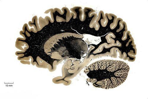 Horizontal Plan of Human Brain  From Michigan State University - Brain Biodiversity Bank.