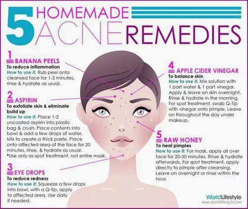 Best Home Made Acne Remedies #Beauty #Trusper #Tip