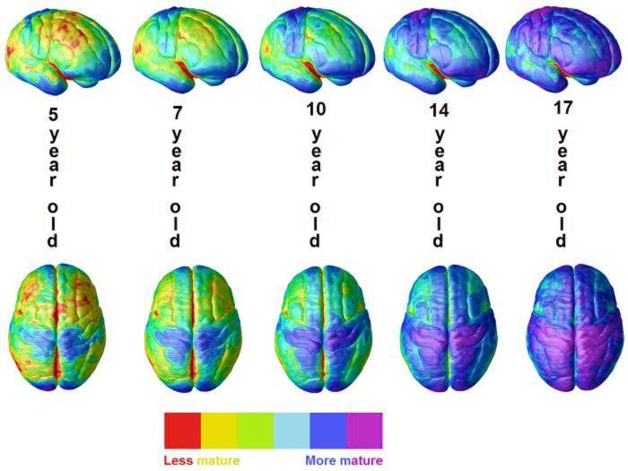 """En estas imágenes del cerebro, las partes más inmaduras se muestran como rojo a amarillo. Púrpura aparece primero en las partes de los sistemas visuales y de motor. Adolescencia: los lóbulos frontales de pensamiento se vuelven azules, aún así, es muy poco maduro. Steven E. Hanna et al. """"La estabilidad y la disminución de la función motora gruesa entre los niños y jóvenes con parálisis cerebral edades comprendidas entre 2 y 21 años."""" Developmental Medicine & Child Neurología , 51 (2009)…"""