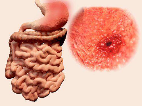 5 jus naturels pour soulager les ulcères gastriques - Améliore ta Santé