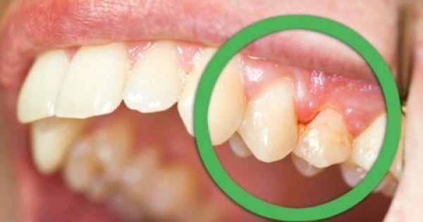 Υγεία - Τα ούλα που ματώνουν και τα δόντια που κουνιούνται είναι δύο από τα πιο συνηθισμένα προβλήματα που αντιμετωπίζουμε στο στόμα. Αν και μπορεί να οφείλονται σ