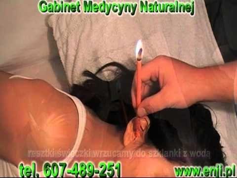 świecowanie uszu - zabieg świecowania uszu - ear candling - Ohrkerzen - YouTube