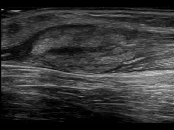 Muscle - Myositis - Intramuscular edema denoting Myositis.