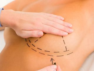 Rzadka odmiana raka po implantach piersi we Francji #popolsku