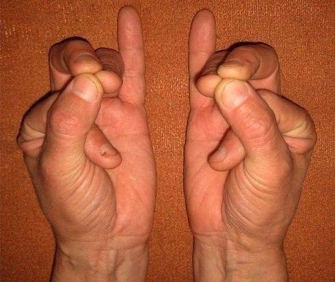 Мудра Спасающая Жизнь Эту мудру желательно освоить всем, и когда-нибудь она спасет вам жизнь. Показания: боли в сердце, сердечные приступы, сердцебиение. При перечисленных состояниях необходимо немедленно приступить к выполнению этой мудры обеими руками одновременно. Облегчение наступает сразу. Методика исполнения: указательный палец сгибаем таким образом, чтобы он коснулся подушечкой концевой фаланги основания большого пальца. Одновременно складываем подушечками средний, безымянный и…