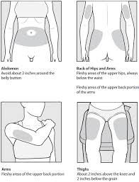Image result for subcutaneous injection sites names
