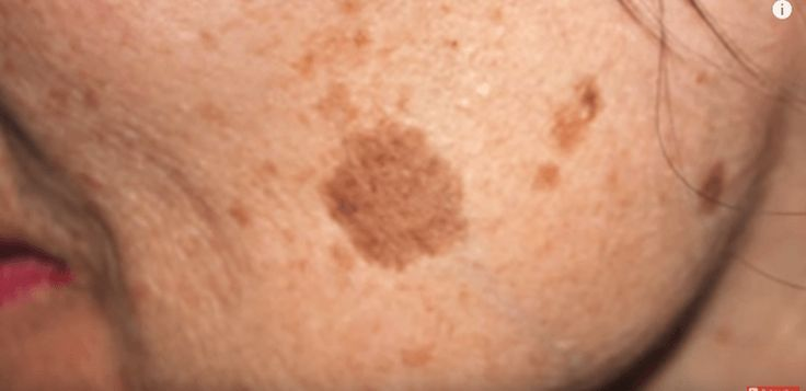 Why do we get facial brown spots and how can we get rid of them