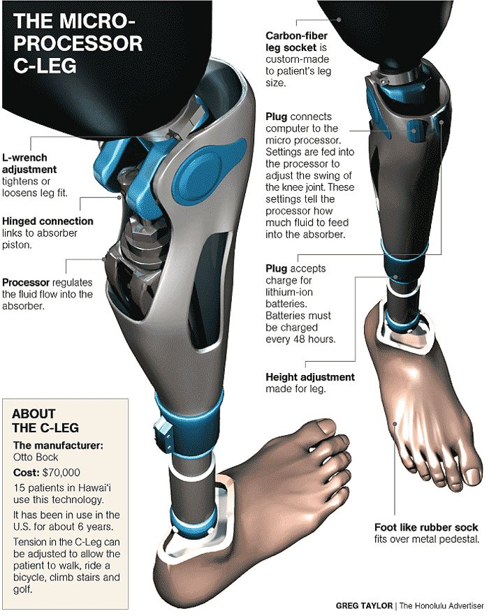 The Microprocessor C-Leg. An example of advanced robotics technology