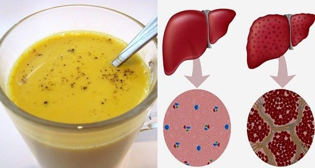 Un puissant remède pour nettoyer et détoxifier naturellement votre foie. Ce thé au curcuma permet d'éliminer les toxines.